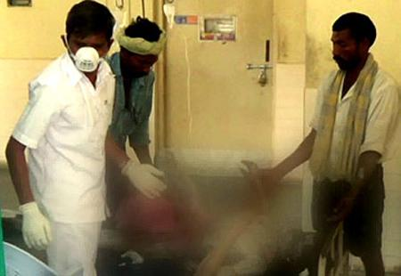 In a fit of jealously, stepmother sets daughter on fire - Sakshi Post