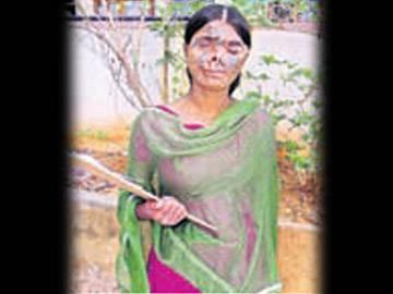 Cancer patient and blind, yet she passes Intermediate exams - Sakshi Post