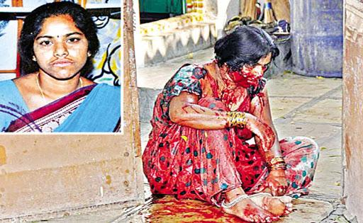 Jyothy died while undergoing treatment at Gandhi hospital. - Sakshi Post