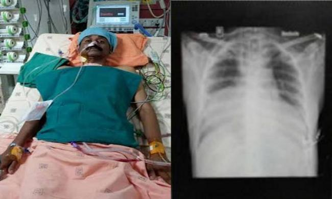 The 45-year-old man has two beating hearts - Sakshi Post