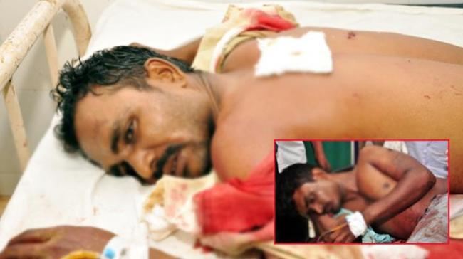Two brothers were allegedly attacked by two men with knives. The incident took place on Friday night at BV Nagar, Nellore. - Sakshi Post