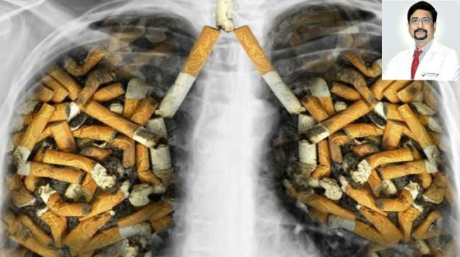 Smoking: The No.1 Cause Of Preventable Disease And Death - Sakshi Post